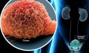 Причины возникновения и лечение полипов мочевого пузыря у взрослых и детей