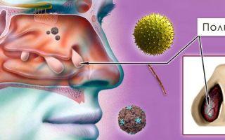 Что такое полипы в носу и какими симптомами они проявляются
