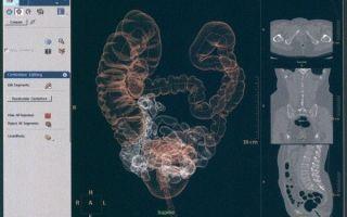 Порядок проведения виртуальной колоноскопии и её стоимость