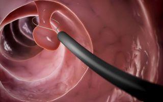 Как удаляют полипы в желудке и возможные послеоперационные осложнения
