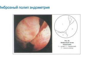 Методы лечения железисто-фиброзного полипа эндометрия и реабилитация после его удаления