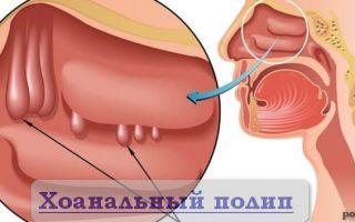 Причины, диагностика хоанального полипа и методы его лечения