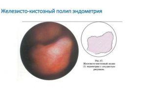 В чем опасность железистого полипа и реабилитация после его удаления