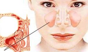 Особенности лечения полипов верхнечелюстной пазухи и возможные осложнения