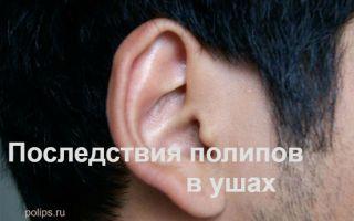 Последствия образования полипов в ухе и как их лечат