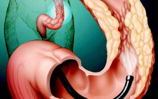 Диагностика и варианты лечения полипа двенадцатиперстной кишки