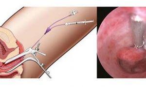 Сколько стоит удаление полипа шейки матки, в матке и в эндометрии