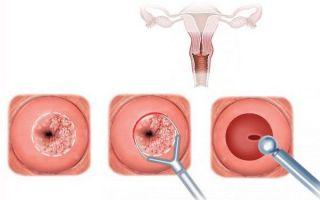Стоимость биопсии шейки матки аппаратом Сургитрон и порядок её проведения