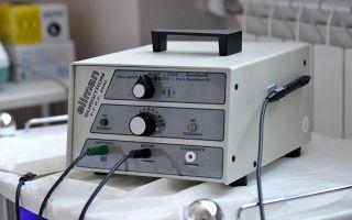 Этапы процедуры удаления геморроя аппаратом Сургитрон и отзывы пациентов