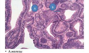 Виды аденоматозного полипа, их лечение и основная опасность
