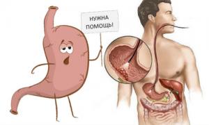 В чем опасность полипов в желудке и как их можно вылечить