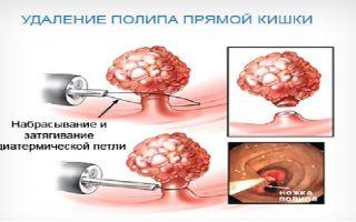 Как проходит операция по удалению полипов в кишечнике