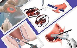 Устранение анальной трещины Сургитроном и другие операции в проктологии