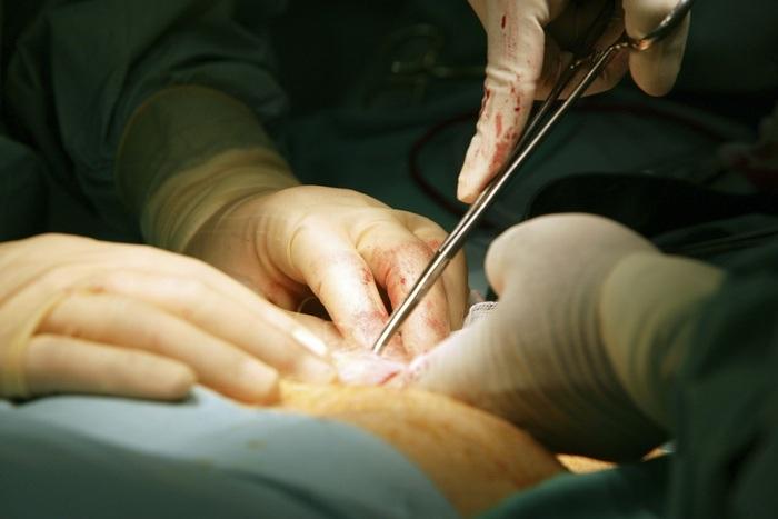 полипы поджелудочной железы причины и лечение