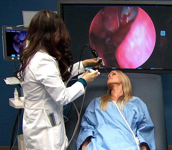 Эндоскопическое удаление полипов в носу шейвером