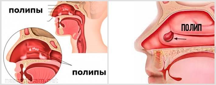 Лечение полипов в носу без операций