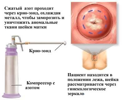 Криодеструкция шейки матки