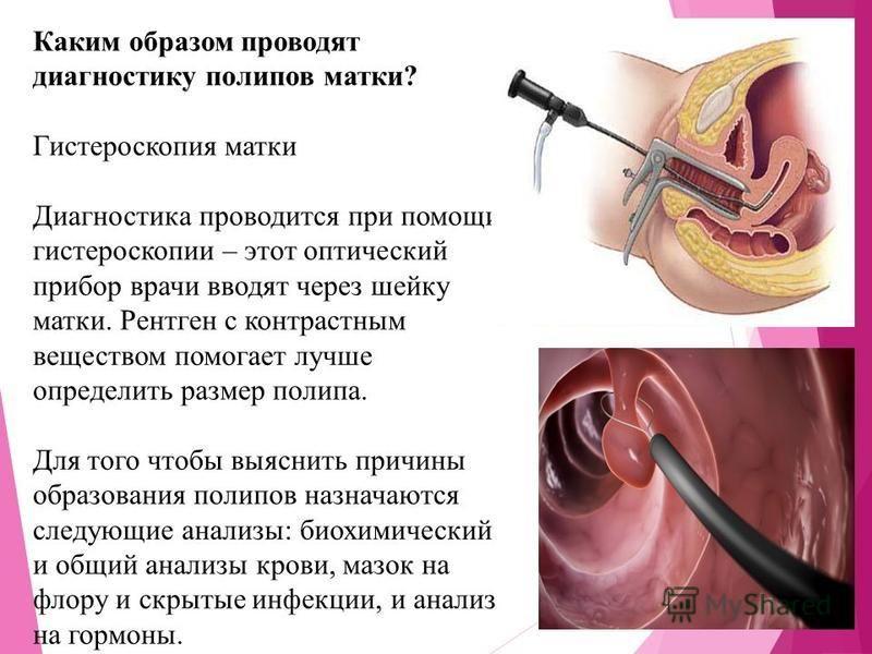 Как диагностируют полипы