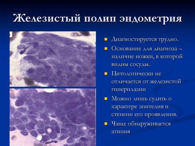 Полип железистый