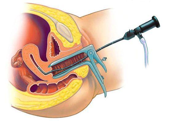 Гистероскопия полипа эндометрия матки - операция по удалению полипа
